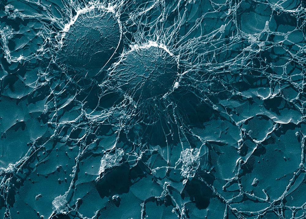 Staphylococcus_aureus_large
